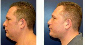 36 Year Old Man Treated With Facelift By Dr Richard G. Reish, MD, New York Plastic Surgeon