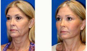37 Year Old Woman Treated With Facelift By Dr Amir M. Karam, MD, San Diego Facial Plastic Surgeon