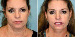 37 Year Old Woman Treated With Facelift By Dr Sean T. Lille, MD, Scottsdale Plastic Surgeon
