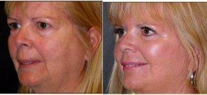41 Year Old Woman Treated With Facelift With Dr Frank Isik, MD, Seattle Plastic Surgeon