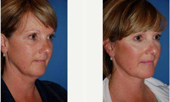 Speaking, opinion, facial plastic surgeons seattle think
