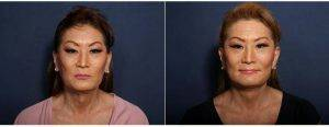 47 Year Old Woman Treated With Facelift (view 1 Of 2) By Dr Johan E. Brahme, MD, San Diego Plastic Surgeon