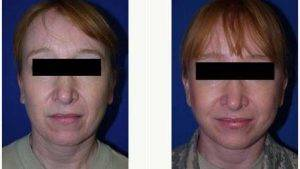 48 Year Old Woman Treated With Facelift By Dr Carlos Mata, MD, MBA, FACS, Scottsdale Plastic Surgeon