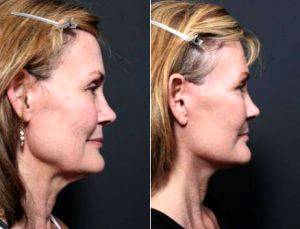 49 Year Old Woman Treated With Facelift By Dr Remus Repta, MD, Scottsdale Plastic Surgeon