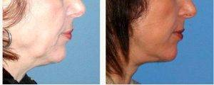 50 Year Old Woman With Facelift With Doctor Karol A. Gutowski, MD, FACS, Chicago Plastic Surgeon