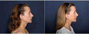 51 Year Old Woman Treated With Neck Lift (view 2 Of 2) By Dr. H. Michael Roark, MD, San Diego Plastic Surgeon