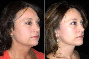 52 Year Old Wanted Facial Rejuvenation With Dr. Lisa Lynn Sowder, MD, Seattle Plastic Surgeon
