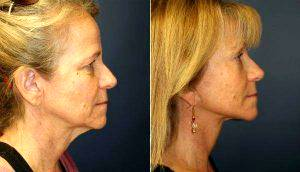 52 Year Old With Premature Aging By Doctor Steve Laverson, MD, San Diego Plastic Surgeon