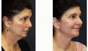 52 Year Old Woman Treated With Facelift With Dr. Kris M. Reddy, MD, FACS, West Palm Beach Plastic Surgeon