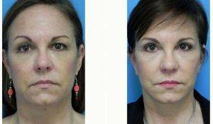 53 Year Old Woman Treated With Facelift With Dr. Michael A. Epstein, MD, FACS, Chicago Plastic Surgeon