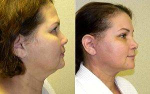54 Year Old HIspanic Patient Who Underwent Facelift And Browlift By Doctor Eric T. Emerson, MD, FACS, Charlotte Plastic Surgeon