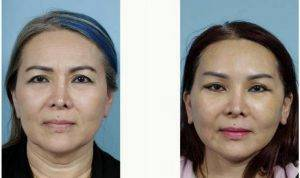 54 Year Old Woman Treated With Facelift With Dr. John Y.S. Kim, MD, FACS, Chicago Plastic Surgeon