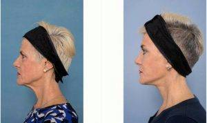55 Year Old Woman Treated With Facelift By Dr Howard Webster, MBBS (Hons), FRACS, Melbourne Plastic Surgeon