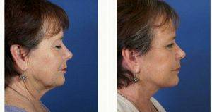 55 Year Old Woman Treated With Facelift By Dr. John M. Hilinski, MD, San Diego Facial Plastic Surgeon