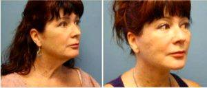 56 Year Old Woman Treated With Facelift By Dr Leonard Lu, MD, Chicago Plastic Surgeon