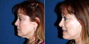56 Year Old Woman Treated With Facelift By Dr. M. Sean Freeman, MD, Charlotte Facial Plastic Surgeon