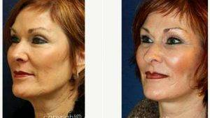 56 Year Old Woman Treated With Facelift With Doctor Amir M. Karam, MD, San Diego Facial Plastic Surgeon