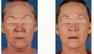Face Lifting Surgery In Los Angeles, CA » Facelift: Info