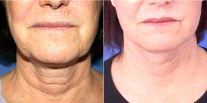 57 Year Old Woman Treated With Facelift By Dr. Glynn Bolitho, PhD, MD, FACS, San Diego Plastic Surgeon