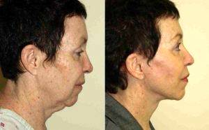58 Year Old Female Treated For Sagging Of The Face And Neck By Dr. Robert M. Freund, MD, New York Plastic Surgeon