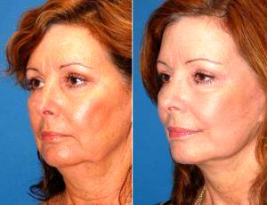 59 Year Old Female Patient Facelift By Dr Ross A. Clevens, MD, Melbourne Facial Plastic Surgeon