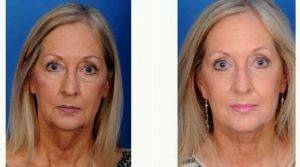 59 Year Old Woman Treated With Facelift With Dr Wayne F. Larrabee, MD, Seattle Facial Plastic Surgeon