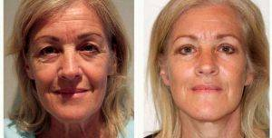 60 Year Old Woman Treated With Facelift By Doctor Damien Grinsell, MBBS, FRACS (Plas), Melbourne Plastic Surgeon