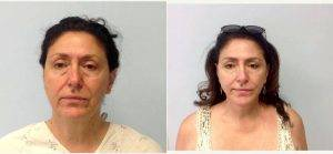 60 Year Old Woman Treated With Facelift By Doctor Ron Soltero, MD, San Diego Plastic Surgeon