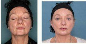 61 Year Old Woman Treated With Face And Neck Lift in Melbourne