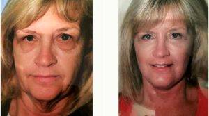 61 Year Old Woman Treated With Facelift With Upper And Lower Lids With Dr. Steven H. Wiener, MD, Scottsdale Plastic Surgeon