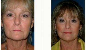 62 Year Old Woman Treated With Facelift With Doctor Donald Wortham, MD, Seattle Facial Plastic Surgeon