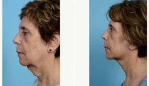 63 Year Old Woman Treated With Facelift By Doctor Thomas A. Mustoe, MD, FACS, Chicago Plastic Surgeon