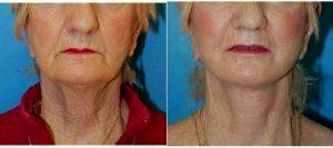 64-74 Year Old Woman Treated With Facelift By Dr. Sharon Y. Giese, MD, New York Plastic Surgeon