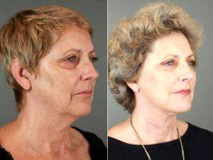 66 Year Old Woman Treated With Facelift By Doctor Patti A. Flint, MD, Scottsdale Plastic Surgeon