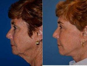 67 Yr Old Female Face Lift Patient With Dr Ross A. Clevens, MD, Melbourne Facial Plastic Surgeon
