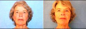 68 Year Old Woman Treated For Facelift With Dr. James C. Pietraszek, MD, San Diego Plastic Surgeon
