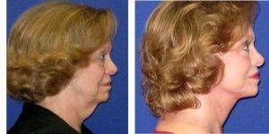 70 Year Old Woman Treated With Facelift With Doctor Gustavo A. Diaz, MD, Charlotte Facial Plastic Surgeon