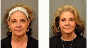 70 Year Old Woman Treated With Facelift With Dr Gilbert Lee, MD, San Diego Plastic Surgeon