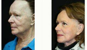 72 Year Old Woman Treated With Facelift By Dr Kris M. Reddy, MD, FACS, West Palm Beach Plastic Surgeon