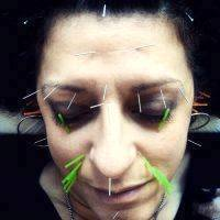 Acupuncture Facelift Charlotte Nc