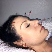 Acupuncture Facelift Massachusetts