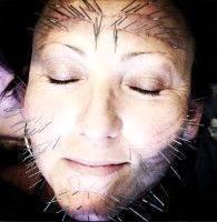 Acupuncture Facelift Melbourne Images