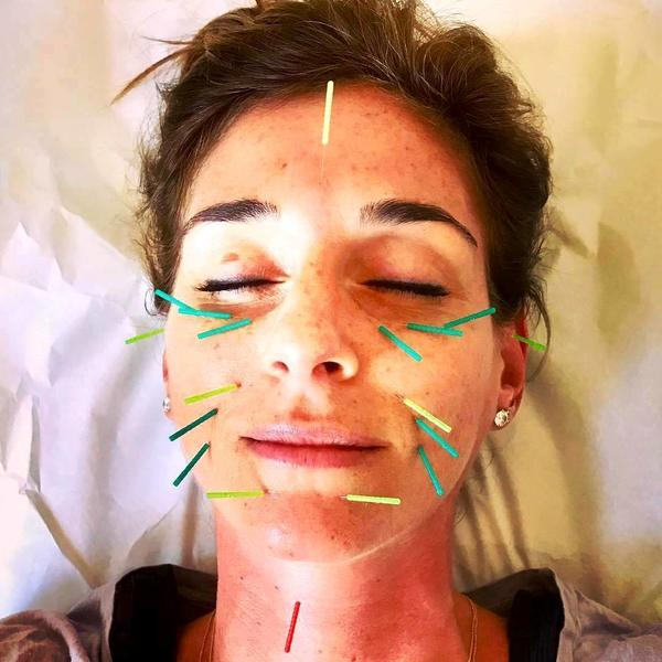Acupuncture Facelift New Jersey » Facelift: Info, Prices ...