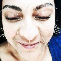 Acupuncture Facelift New York