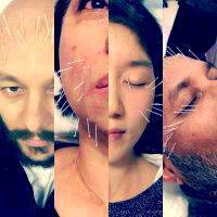 Acupuncture Facelift Scottsdale