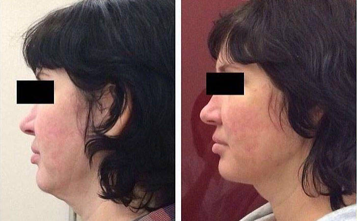 Aptos Facelift Before After