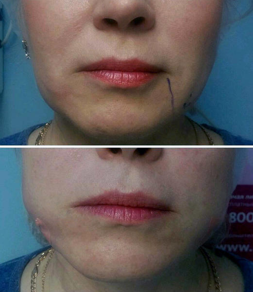 Aptos Lower Facelift Before After