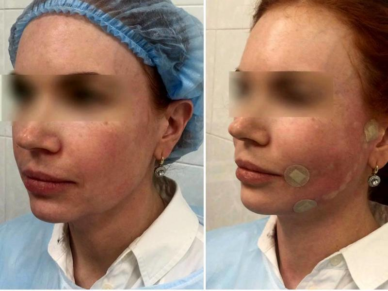 Aptos Thread Facelift Before And After » Facelift: Info, Prices