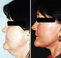 Beautiful Lower Facelift Results