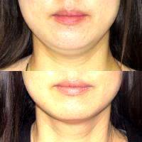 Before And After Coolsculpting Mini For The Submental Or Chin Fat